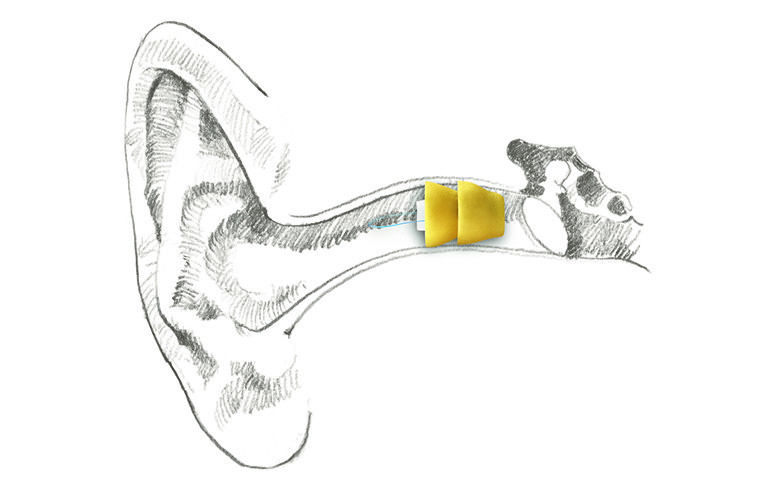 Lyric Hearing Aid in Position small